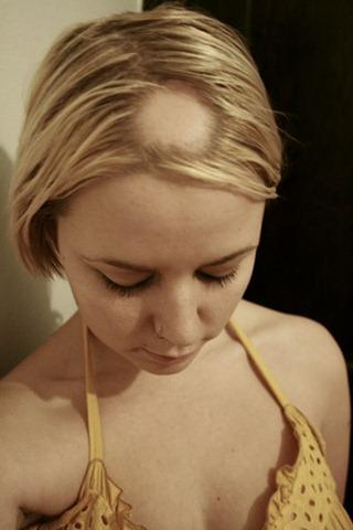 La vitamina в12 ayuda a las caídas de los cabello