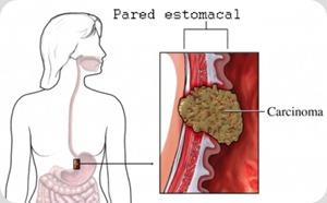 tratamiento de cancer de estomago