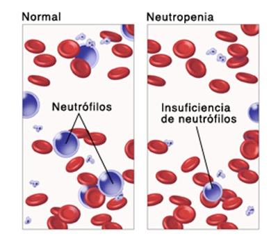 neutrofilos bajos