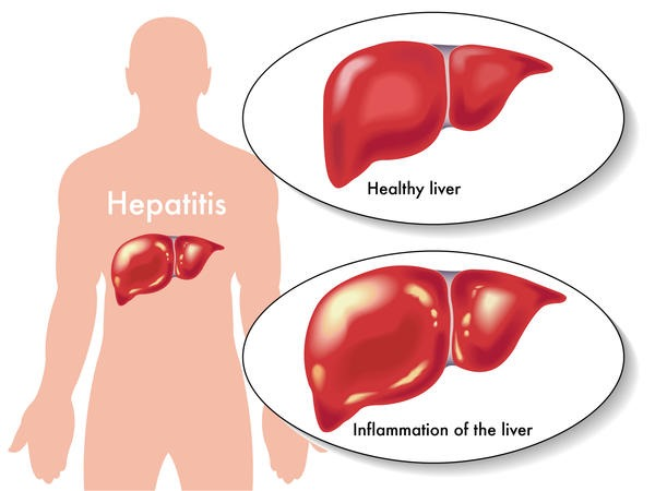 infectious hepatitis What you need to know about infectious canine hepatitis in dogs, including risk factors, signs, symptoms, diagnosis, treatment and prevention.