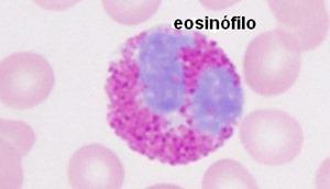 eosinofilos