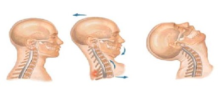 curvas espinales