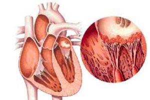 carditis reumatica