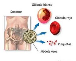 anemia aplasica